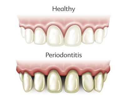 Proanthocyanes et protection contre la parodontie