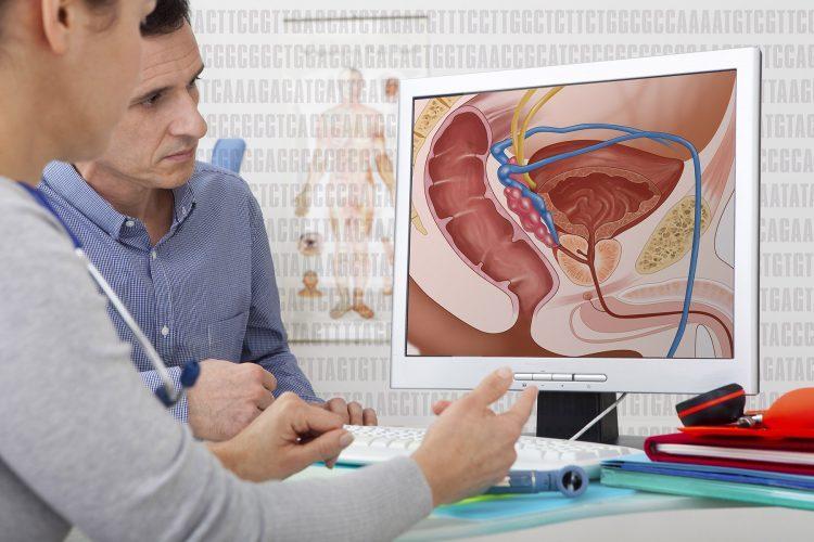 article sur la prostate