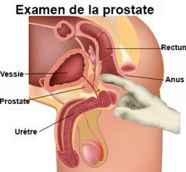 le toucher rectal pour détecté le cancer de la prostate